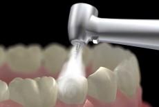 کشف داروی پوسیدگی دندان