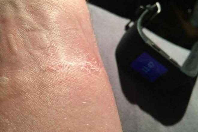 پاسخ به شکایت کاربران اسمارت واچ Fitbit Surge از سوزش پوست
