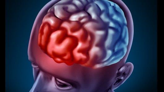 مولکولی طبیعی جهت کند کردن شروع بیماری آلزایمر کشف شد
