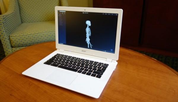 Acer Chromebook 13 CB5-311 – B