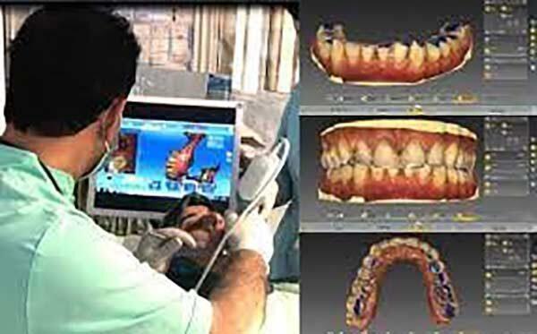 مراحل کاشت دندان به روش دیجیتال