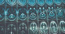 استفاده از ویروس ها در درمان تومور مغزی